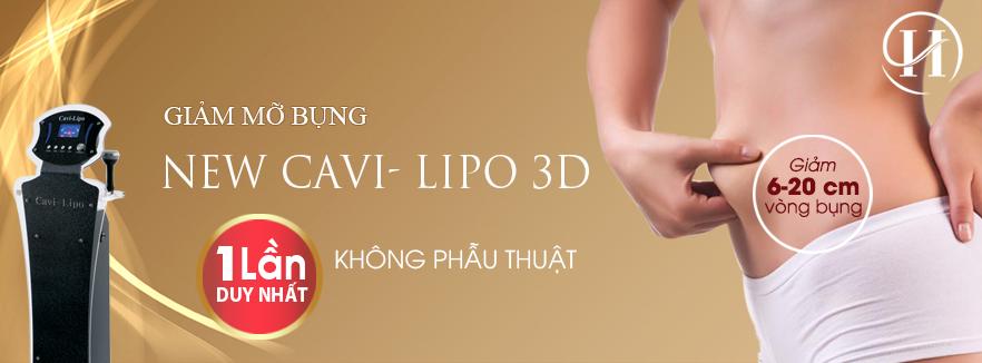 New Cavi-lipo 3D bí quyết giúp bạn xử lý mỡ thừa nhanh chóng