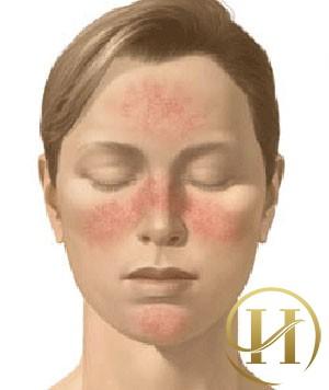 Biểu hiện của bệnh giãn mao mạch thường gặp ở mặt