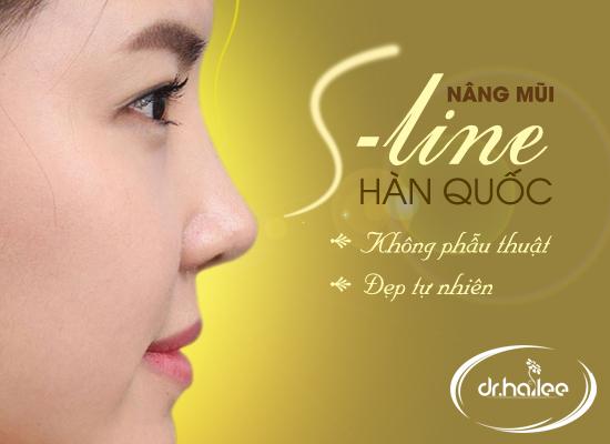 Nâng mũi S - Line không phẫu thuật