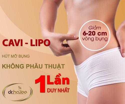 Giảm mỡ thừa ở bụng nhanh hiệu quả bằng công nghệ Cavi-lipo