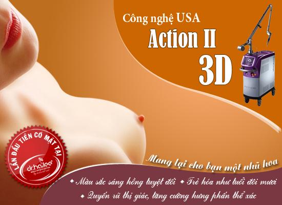 Làm hồng nhũ hoa Action II 3D