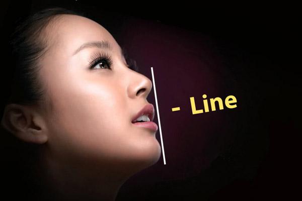 Mũi S-line tạo được dáng mũi đẹp tự nhiên và phù hợp với tất cả mọi người