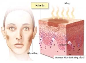 Nguyên nhân gây nám da mặt nội tiết