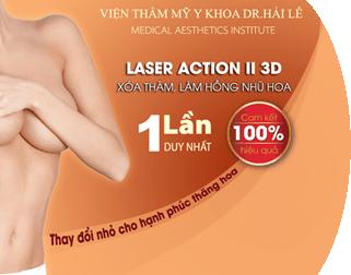 Triệt lông vĩnh viễn Laser Action II 3D