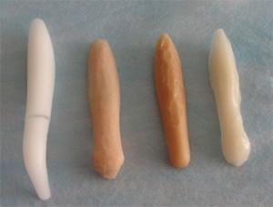 Sụn nhân tạo là chất liệu được sử dụng khá nhiều trong các phẫu thuật nâng mũi