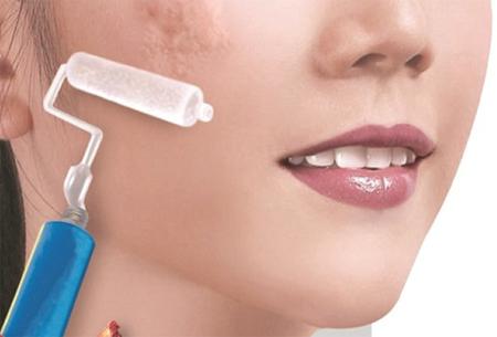 Điều trị sẹo lồi trên mặt dễ dàng bằng các công nghệ Laser