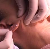 Tiến hành điều trị tạo khuôn mặt chữ V.