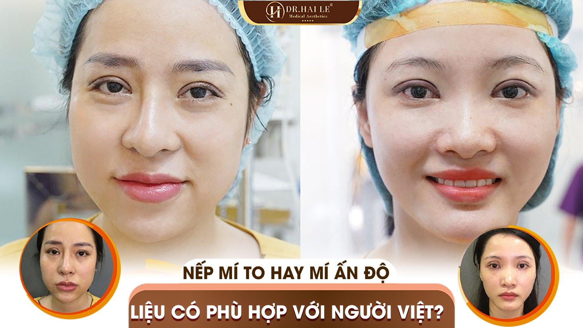 Nếp mí to hay mí Ấn Độ liệu có phù hợp với người Việt ❓