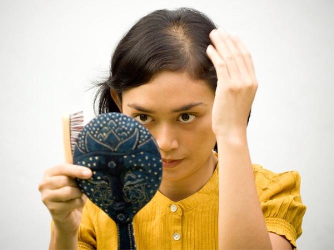 Sau khi cấy tóc sinh học xong có bị rụng lại không?