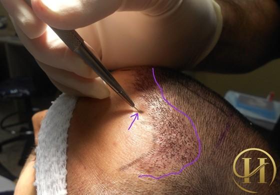 Cấy tóc sinh học bằng Biofibre có đau không?