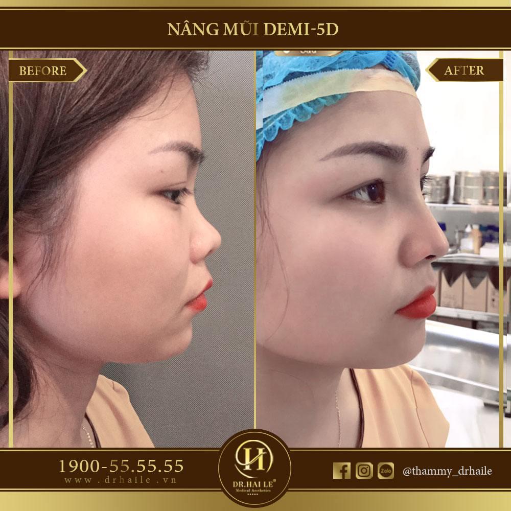 Nâng mũi Demi 5D