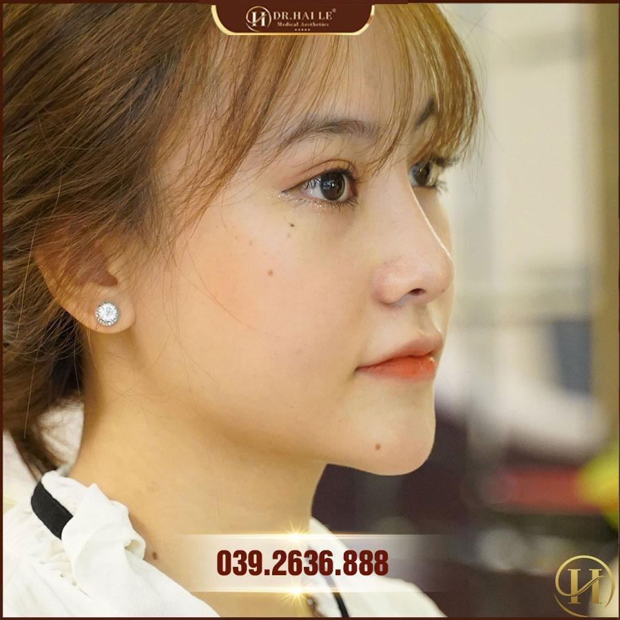 mũi Bích Phương Demi Tech 6D sau 6 tháng