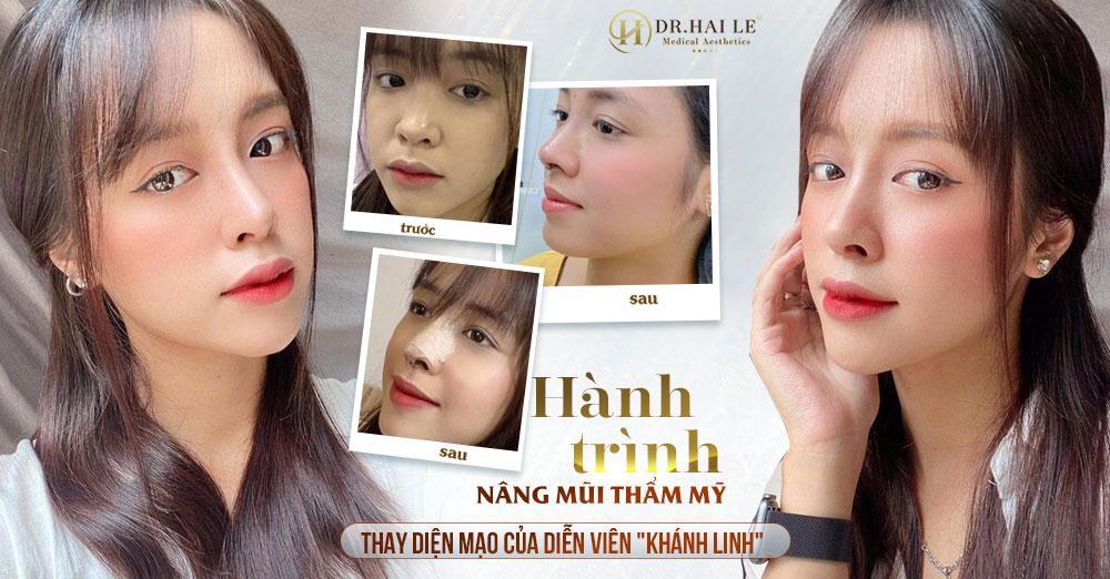 Hành trình nâng mũi - Thay diện mạo, đổi số phận của diễn viên Khánh Linh