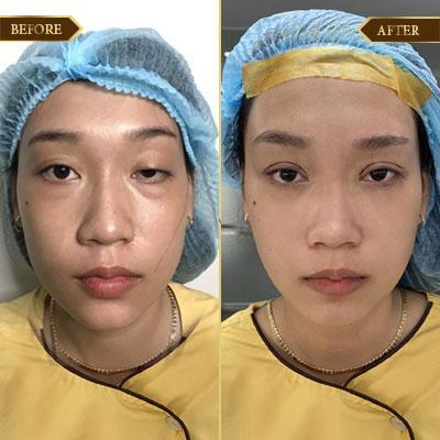 Mai Thị Huệ, 34 tuổi, Quảng Ninh