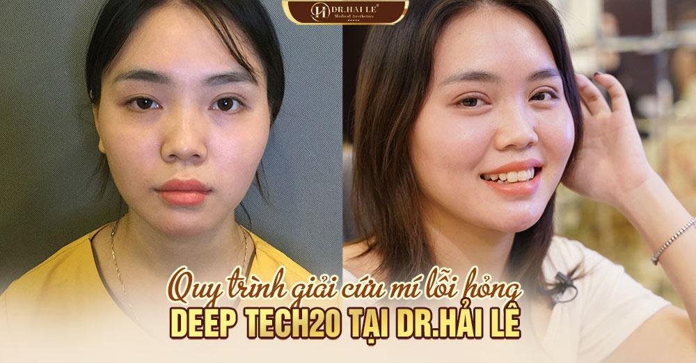 Quy trình giải cứu mí lỗi hỏng DEEP TECH20 tại Dr.Hải Lê