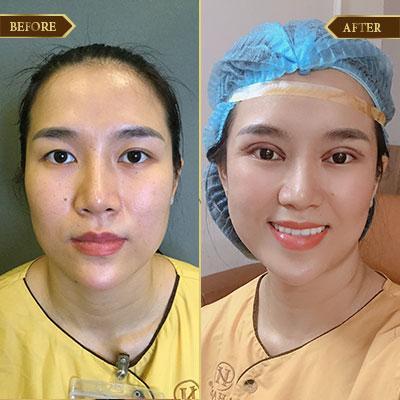 Thu Trinh, 29 tuổi, Hà Nội