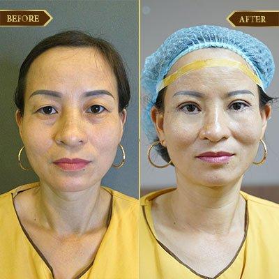 Tâm Anh, 41 tuổi, Hà Nội