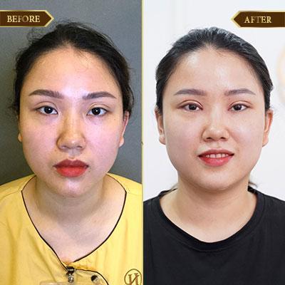 Phạm Thị Bắc, 35 tuổi, Hà Nội