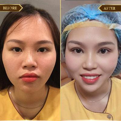 Phạm Thị Hồng, 28 tuổi, Hà Nam