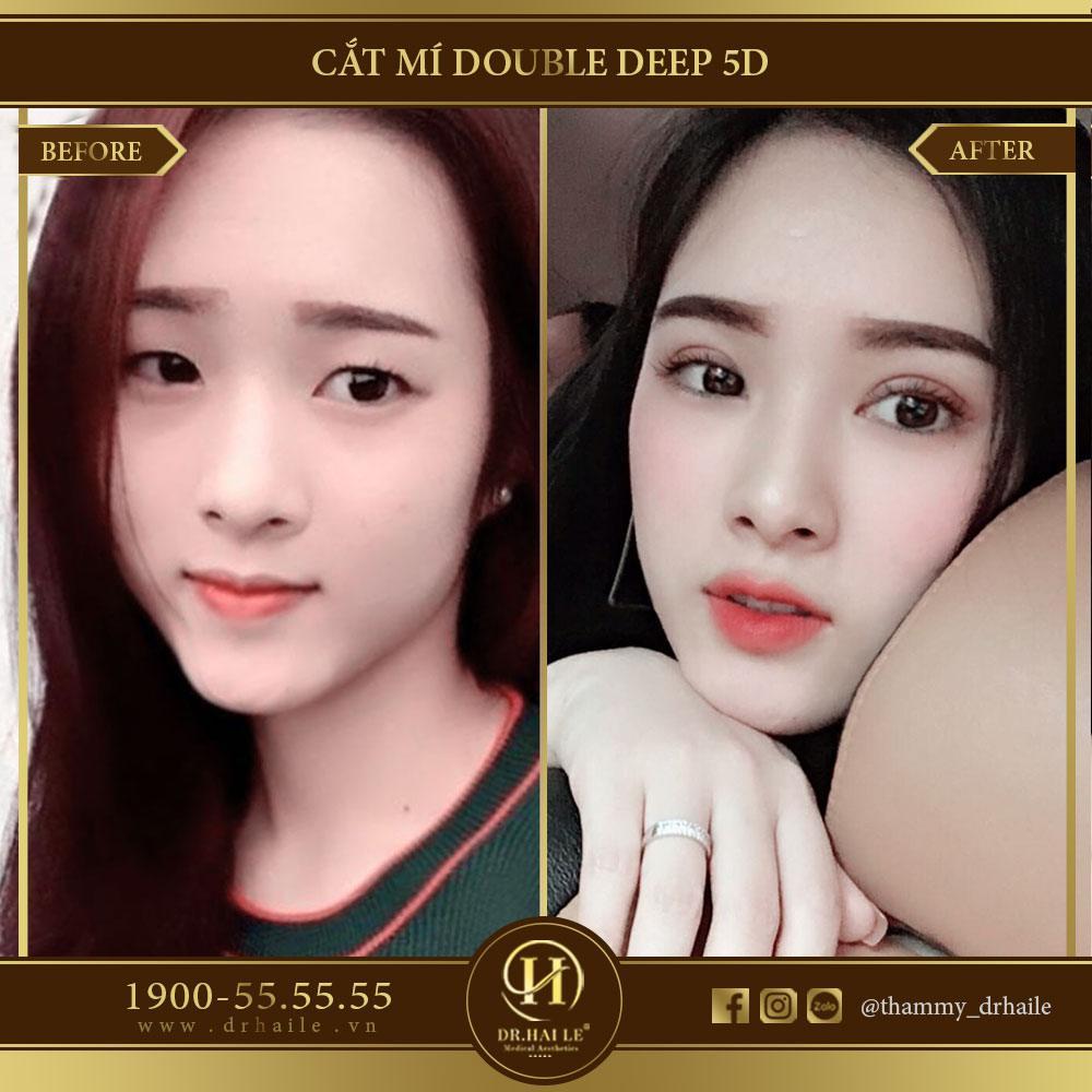 Cắt mí Double Deep 5D