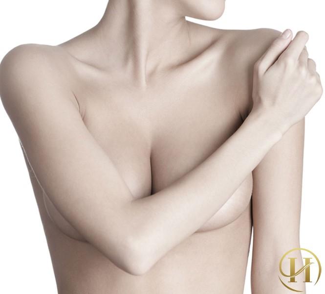 Cách chăm sóc sau khi nâng ngực có thể bạn chưa biết