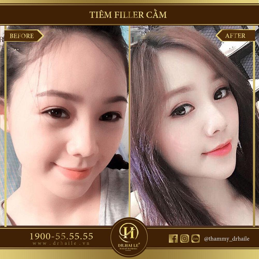 Hotgirl Quỳnh Kool tiêm filler cằm v line