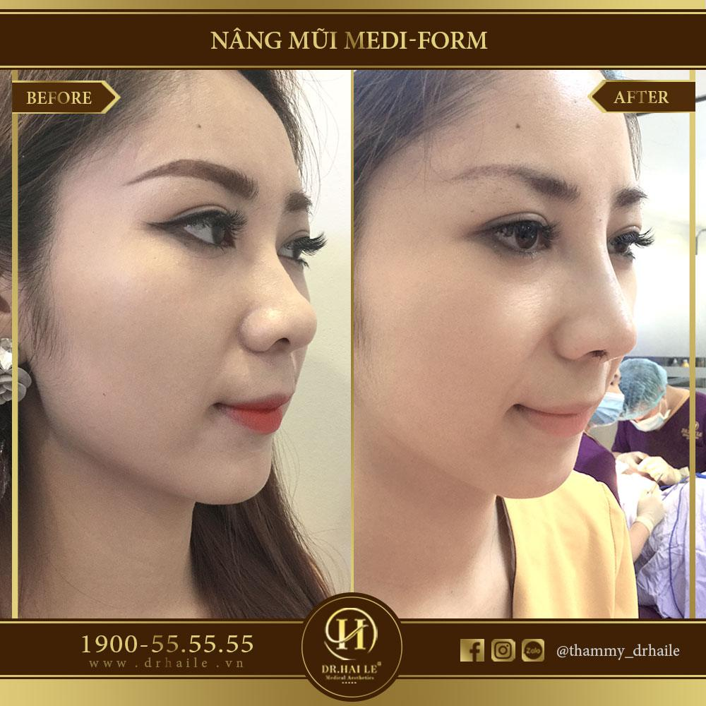 Nâng mũi Medi Form