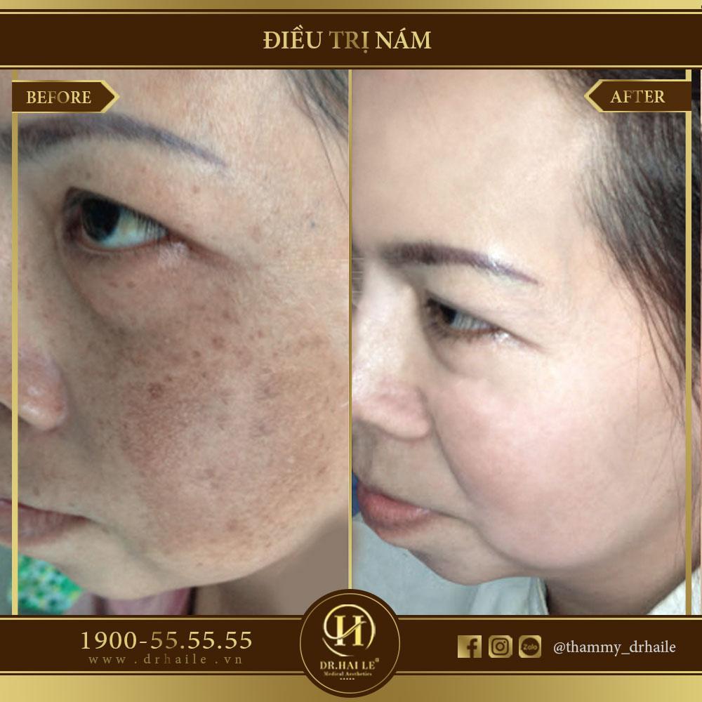 Kết quả điều trị Nám tại Dr.Hải Lê