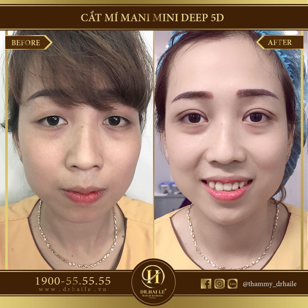 Cắt mí Mani Mini Deep 5D