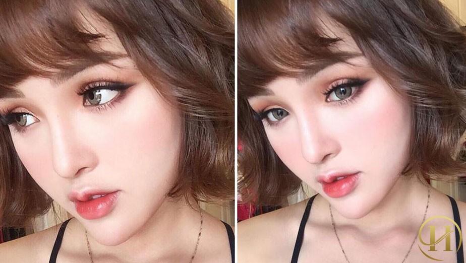 Đôi mắt của Tâm Chibi sau cắt mí có độ cong vểnh lông mi đạt chuẩn tỉ lệ 90 độ mang đến đôi mắt 2 mí rạng ngời, tươi trẻ