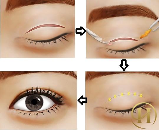 Cắt mí mắt có nguy hiểm tới cơ thể không?