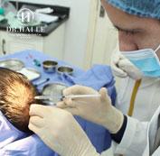 Sát khuẩn gây tê vùng da đầu cấy tóc