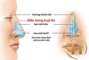 Phẫu thuật sữa mũi gồ