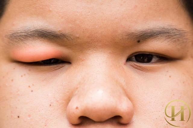"""Kết quả hình ảnh cho Lẹo mắt và nguyên nhân"""""""