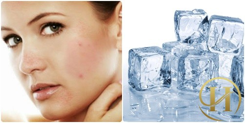 Chườm đá lạnh - cách chữa dị ứng mỹ phẩm nhanh chóng