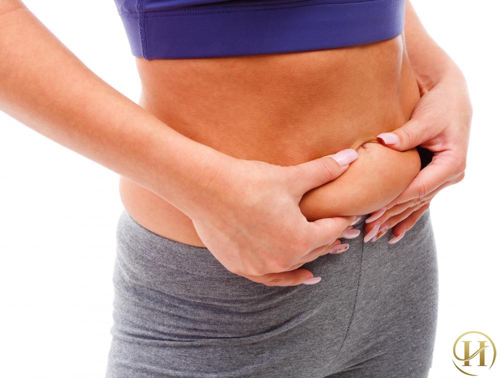Các phương pháp làm giảm mỡ bụng dưới hiệu quả nhất
