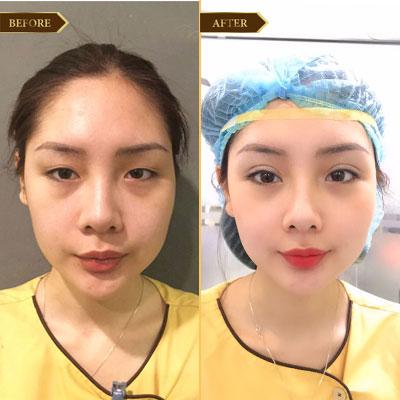 Ngọc Anh, 27 Tuổi, Hà Nội