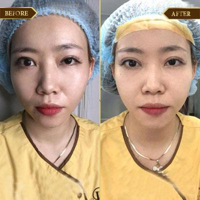 Nguyễn Diệu Linh, 28 tuổi, TP HCM
