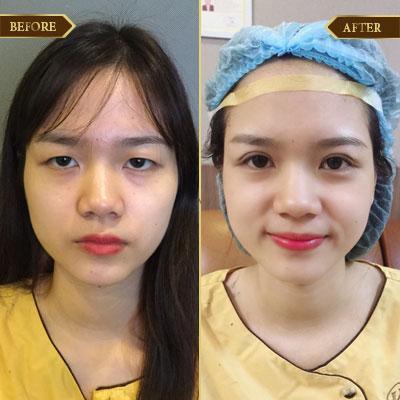 Hồng Linh, 28 tuổi, Quảng Ninh