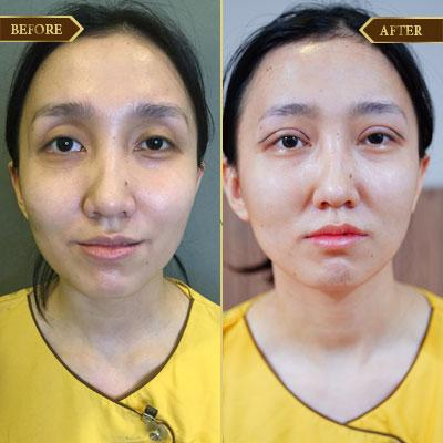 Diệu Hương, 34 tuổi, Đông Anh