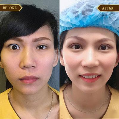 Lê Thị Phương, 30 tuổi, Hà Nam