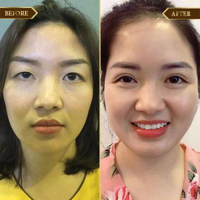 Thu Phương, 30 tuổi, Hải Phòng