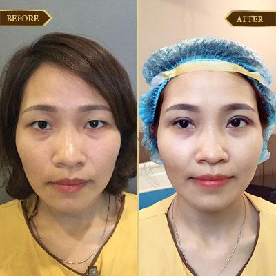 Thu Tâm, 35 tuổi, Quảng Ninh