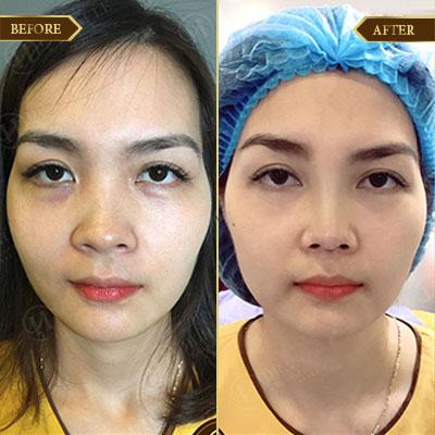 Trâm Anh, 30 tuổi, Hà Nội