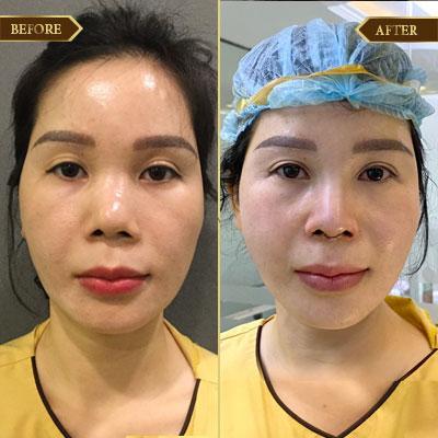 Bích Thủy, 33 tuổi, Hà Nội