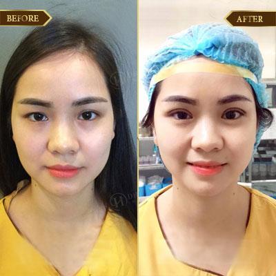 Thanh Tâm, 28 tuổi, Bắc Giang