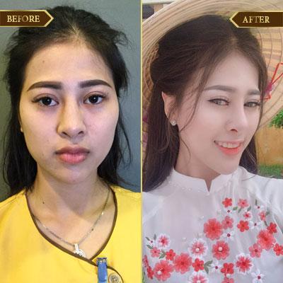 Hồng Phượng 22 tuổi, Tuyên Quang