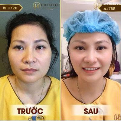 Hạ Linh, 33 tuổi, Đông Anh