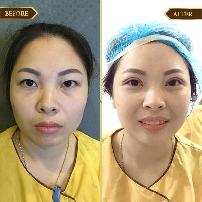 Thu Liên, 32 tuổi, Quảng Ninh