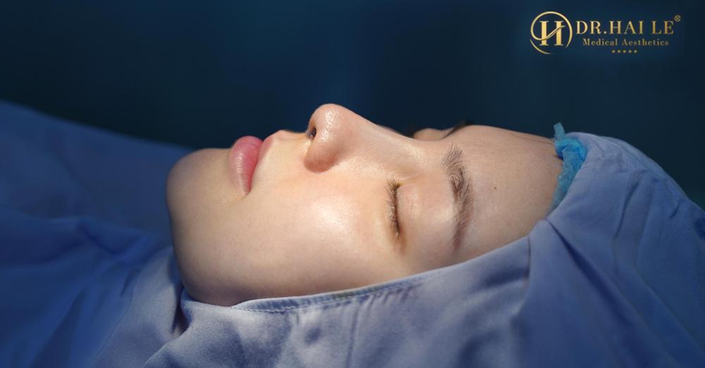 Sở hữu dáng mũi cao thanh tú cùng góc nghiêng hoàn hảo không còn là mơ ước với nâng mũi Demi 5D